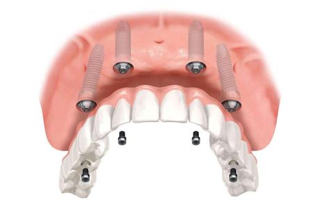 Implantologia San Severo, Foggia