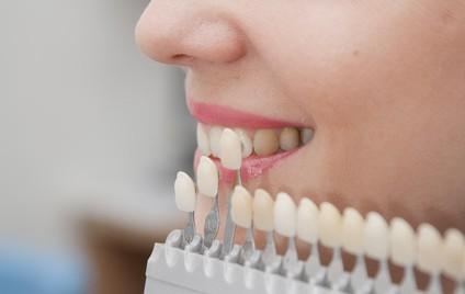 Odontoiatria Medicina Estetica San Severo, Foggia