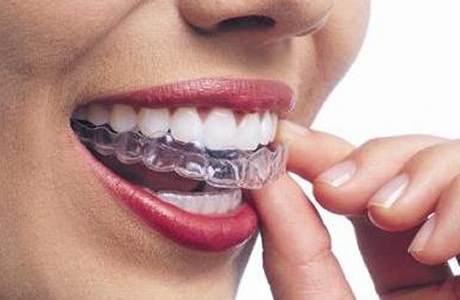 Ortodonzia ortopedico-funzionale e fissa San Severo, Foggia