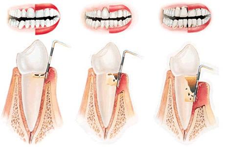 Parodontologia San Severo, Foggia