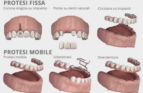 Protesi dentaria fissa e mobile San Severo, Foggia